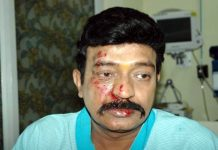 Rajasekhar Injured On Kalki Movie Sets